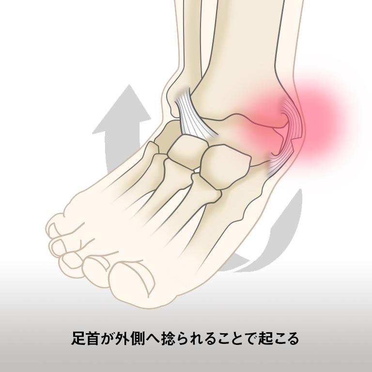 と 痛い 伸ばす 足首
