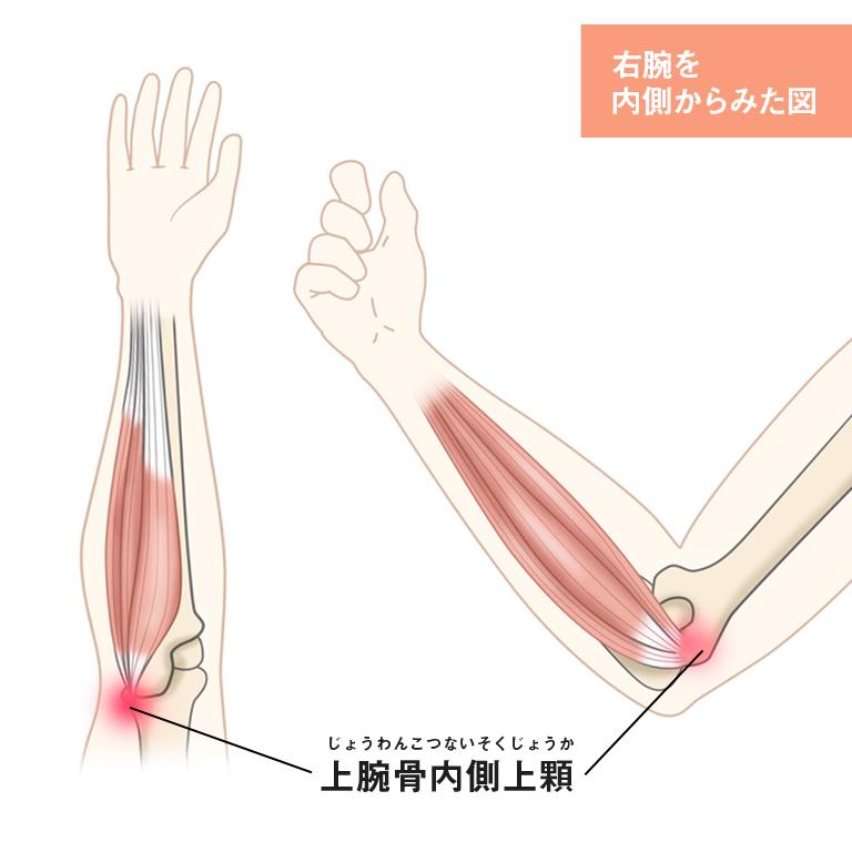 痛い 肘 内側 が
