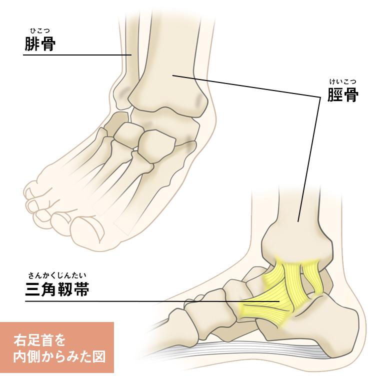 足首 痛い 腫れ て ない